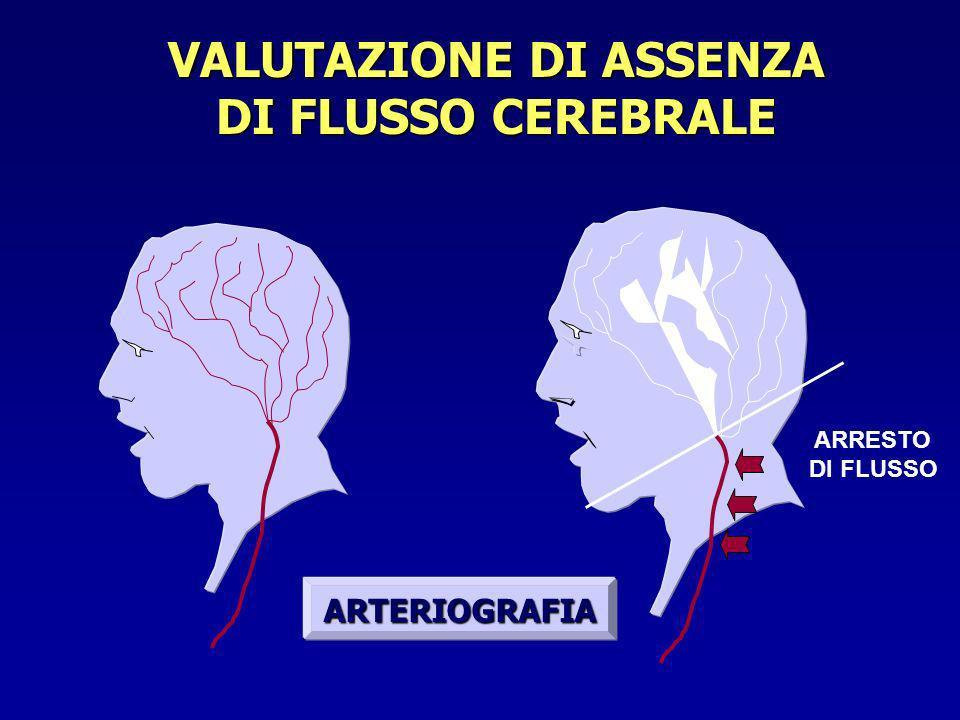 VALUTAZIONE DI ASSENZA DI FLUSSO CEREBRALE ARTERIOGRAFIA ARRESTO DI FLUSSO