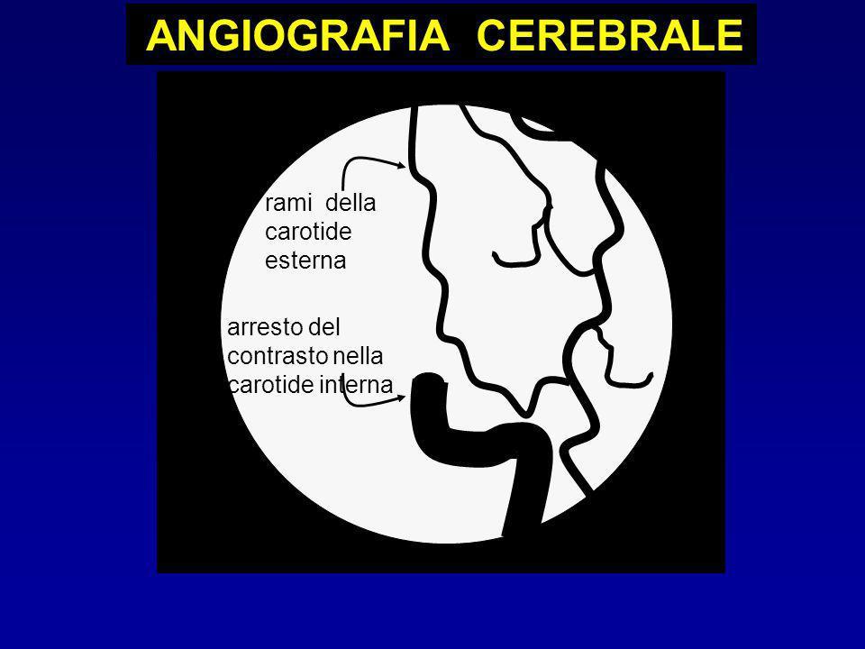 arresto del contrasto nella carotide interna rami della carotide esterna ANGIOGRAFIA CEREBRALE