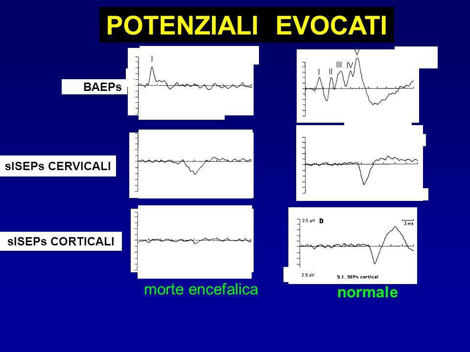 BAEPs POTENZIALI EVOCATI morte encefalica slSEPs CERVICALI slSEPs CORTICALI normale I II III IV V I