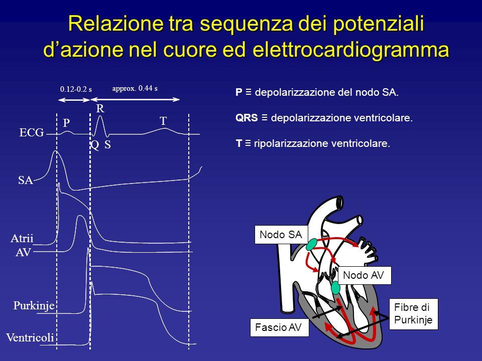 Londa P è dovuta alla depolarizzazione del nodo SA. Il complesso QRS è dovuto alla depolarizzazione ventricolare. Londa T corrisponde alla ripolarizza