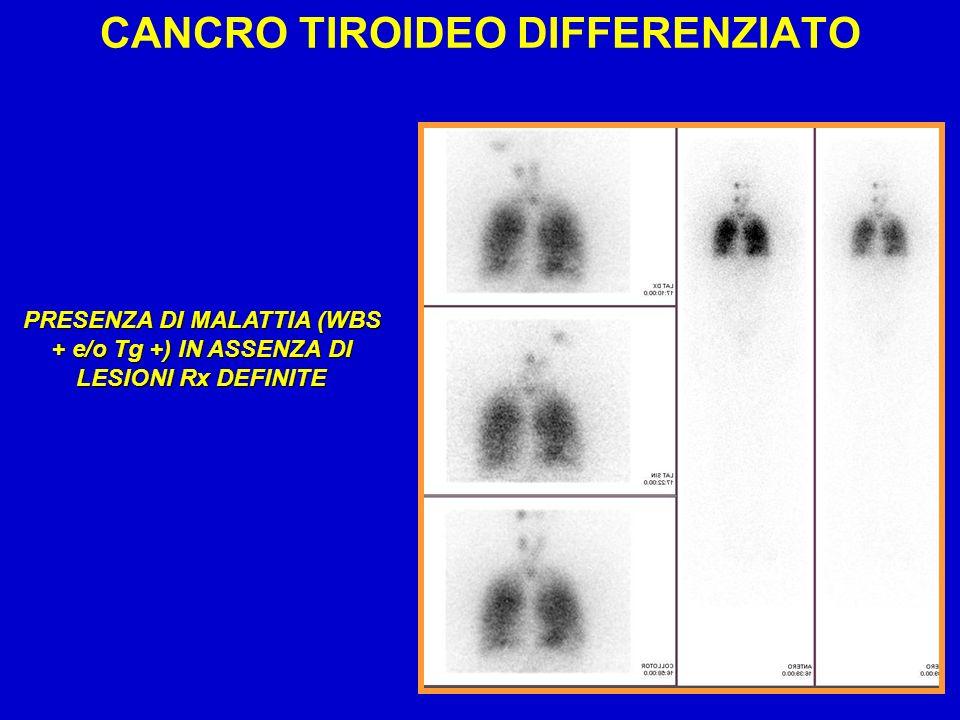 PRESENZA DI MALATTIA (WBS + e/o Tg +) IN ASSENZA DI LESIONI Rx DEFINITE CANCRO TIROIDEO DIFFERENZIATO