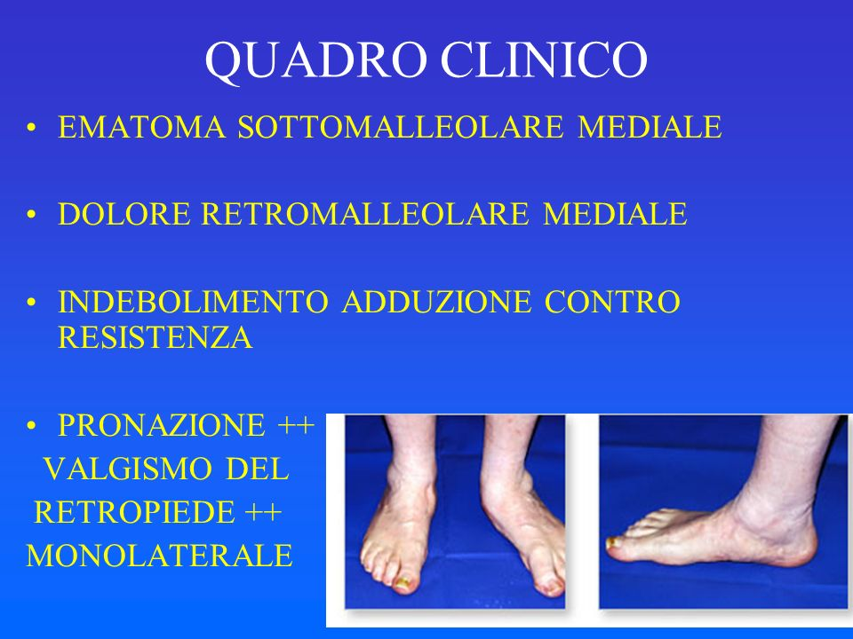 CLASSIFICAZIONE DI MYERSON Stage I: tenosynovitis without deformity Stage II: ruptured posterior tibial tendon, flexible flatfootStage II: ruptured posterior tibial tendon, flexible flatfoot Stage III: rigid hindfoot valgus Stage IV: ankle valgus Posterior tibial tendon rupture: a refined classification system.Posterior tibial tendon rupture: a refined classification system.Bluman EM, Title CI, MyersonMS.