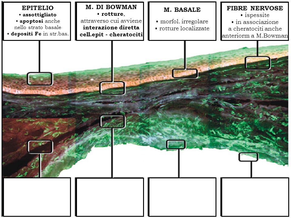ISTOPATOLOGIA EPITELIO assottigliato apoptosi anche nello strato basale depositi Fe in str.bas. M. DI BOWMAN rotture, attraverso cui avviene interazio