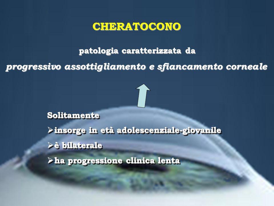 patologia caratterizzata da progressivo assottigliamento e sfiancamento corneale progressivo assottigliamento e sfiancamento corneale. Solitamente ins