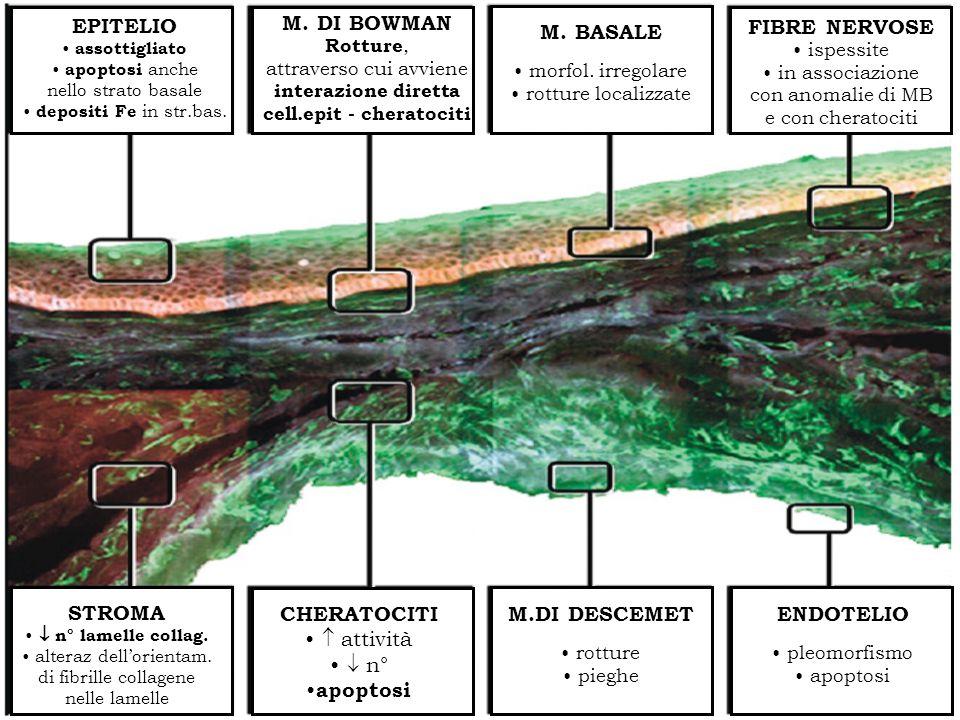 ISTOPATOLOGIA M.DI DESCEMET rotture pieghe ENDOTELIO pleomorfismo apoptosi EPITELIO assottigliato apoptosi anche nello strato basale depositi Fe in st