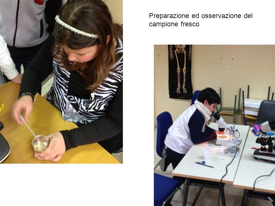 Preparazione ed osservazione del campione fresco