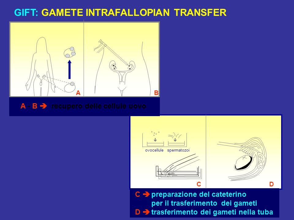 GIFT: GAMETE INTRAFALLOPIAN TRANSFER C preparazione del cateterino per il trasferimento dei gameti D trasferimento dei gameti nella tuba ovocellule CD spermatozoi AB A - B recupero delle cellule uovo