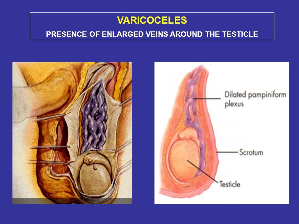 VARICOCELE Incidenza nella popolazione infertile: 19-41% generalmente manifesto alla pubertà (15% a 13 aa) meccanismi di danno: ipossia, reflusso di metaboliti renali e surrenalici, temperatura, radicali liberi riduzione del volume testicolare correzione in adolescenza: previene ulteriore atrofia, migliora i parametri seminali, può revertire larresto della crescita testicolare miglioramento dei parametri seminali e PR nelladulto infertile nella metà dei pazienti FATTORI TESTICOLARI