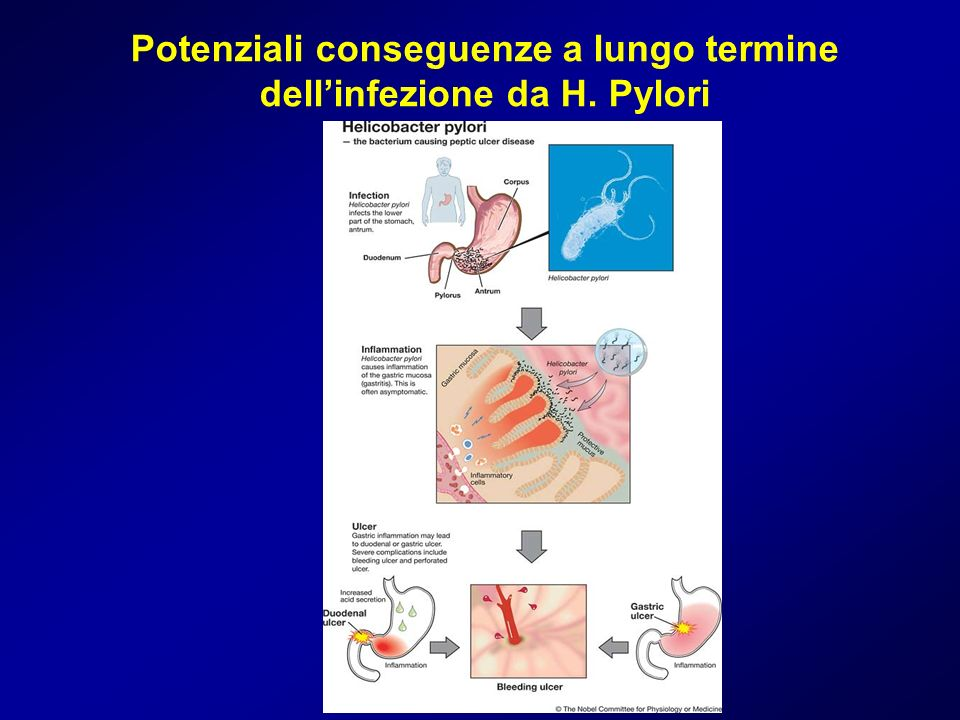 Potenziali conseguenze a lungo termine dellinfezione da H. Pylori