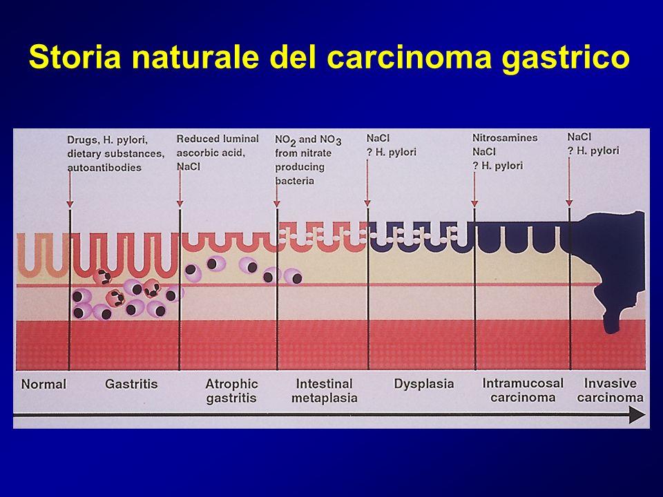 Storia naturale del carcinoma gastrico