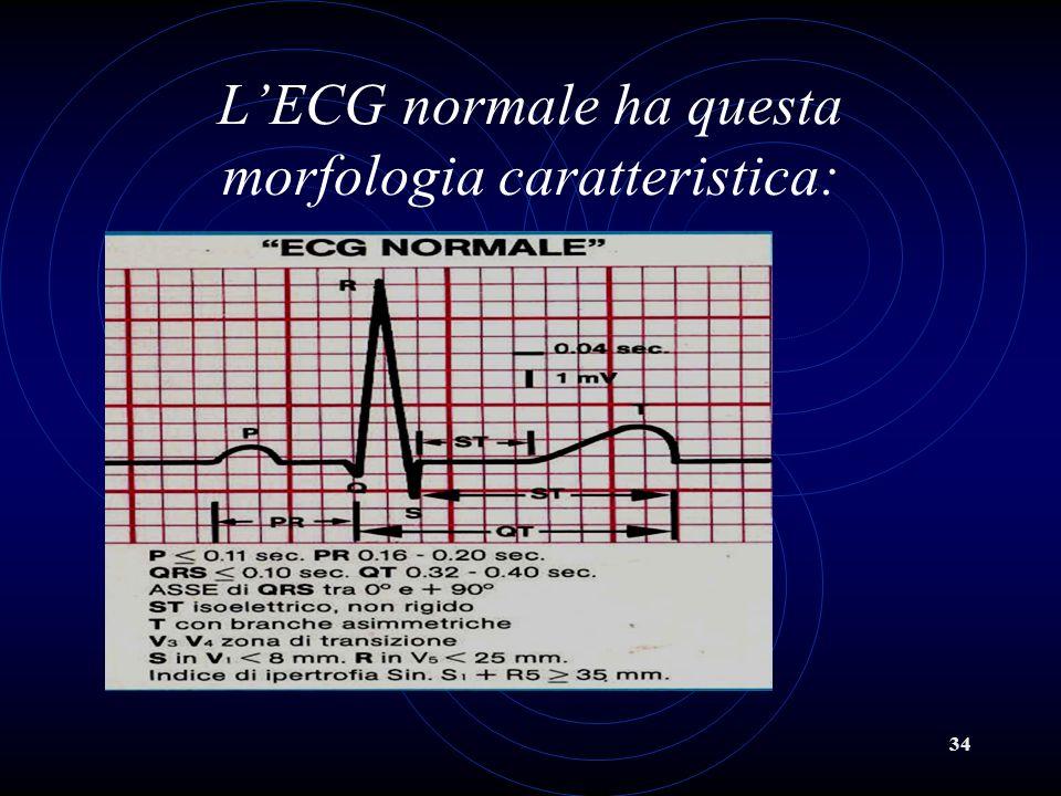 34 LECG normale ha questa morfologia caratteristica: