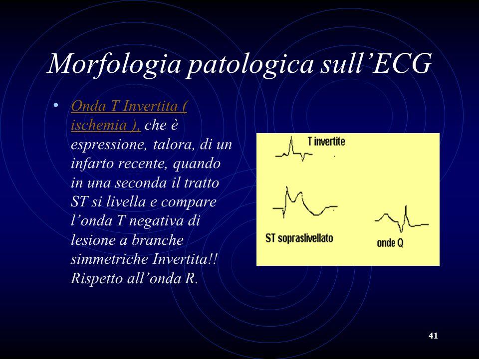 41 Morfologia patologica sullECG Onda T Invertita ( ischemia ), che è espressione, talora, di un infarto recente, quando in una seconda il tratto ST s