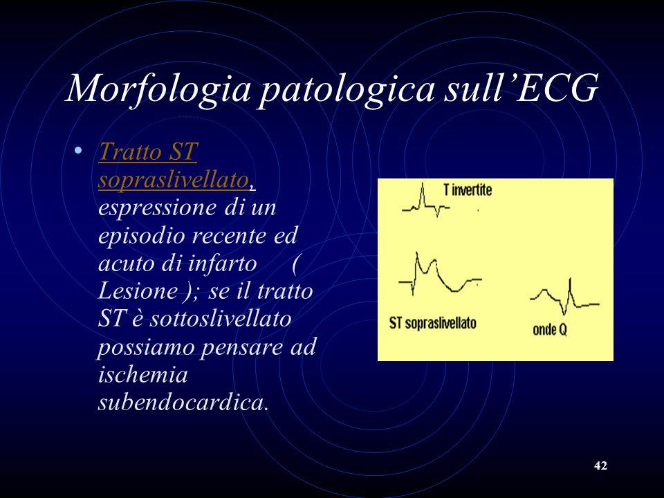 42 Morfologia patologica sullECG Tratto ST sopraslivellato, espressione di un episodio recente ed acuto di infarto ( Lesione ); se il tratto ST è sott