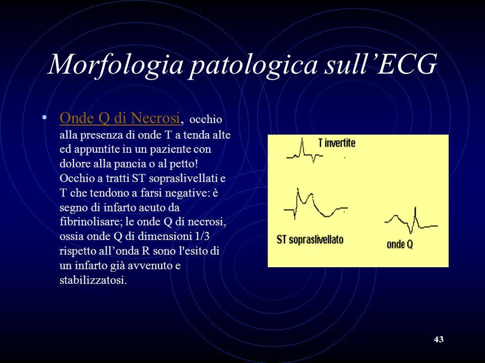 43 Morfologia patologica sullECG Onde Q di Necrosi, occhio alla presenza di onde T a tenda alte ed appuntite in un paziente con dolore alla pancia o a