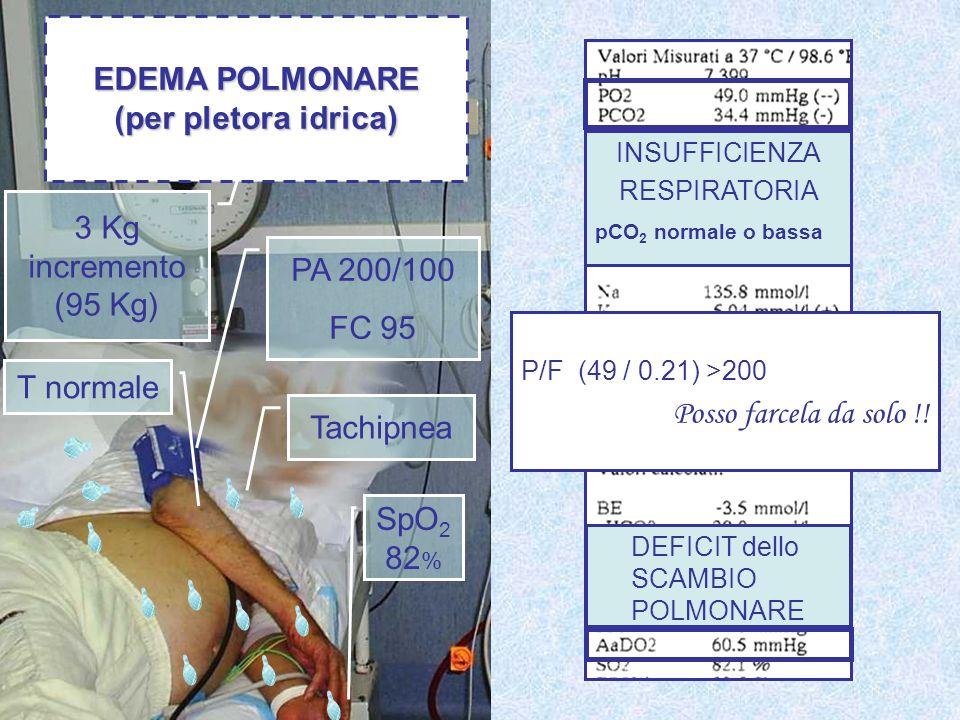 PA 200/100 FC 95 3 Kg incremento (95 Kg) SpO 2 82 % Tachipnea T normale EDEMA POLMONARE (per pletora idrica) P/F (49 / 0.21) >200 Posso farcela da sol