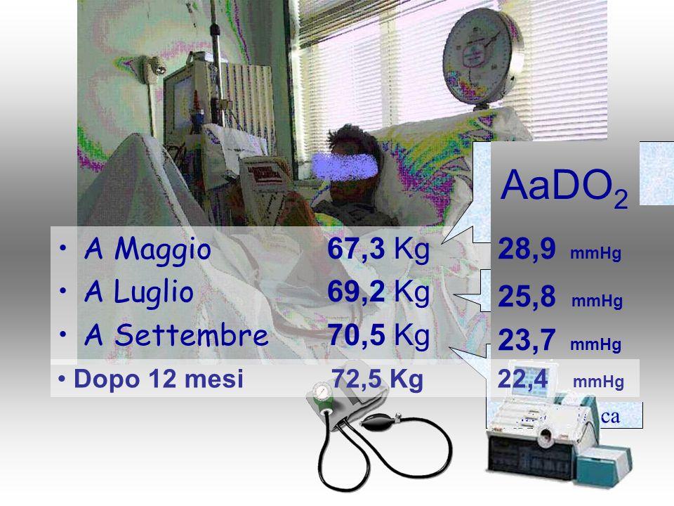 A Maggio 67,3 Kg A Luglio 69,2 Kg A Settembre 70,5 Kg Ca-antagonista Beta-bloccante ACE-inibitore 130/80 & Ipotensione intradialitica ACE-inibitore 28