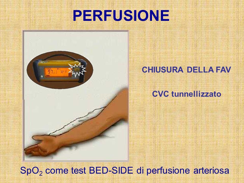 PERFUSIONE SpO 2 come test BED-SIDE di perfusione arteriosa CHIUSURA DELLA FAV CVC tunnellizzato