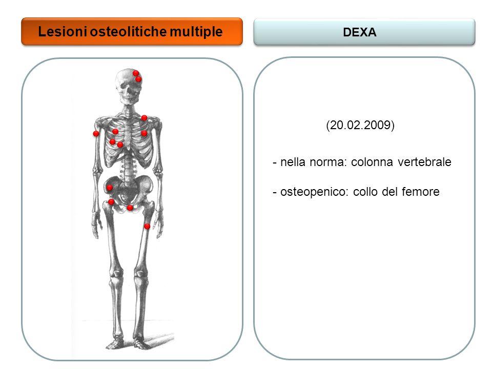 Lesioni osteolitiche multiple DEXA - nella norma: colonna vertebrale - osteopenico: collo del femore (20.02.2009)