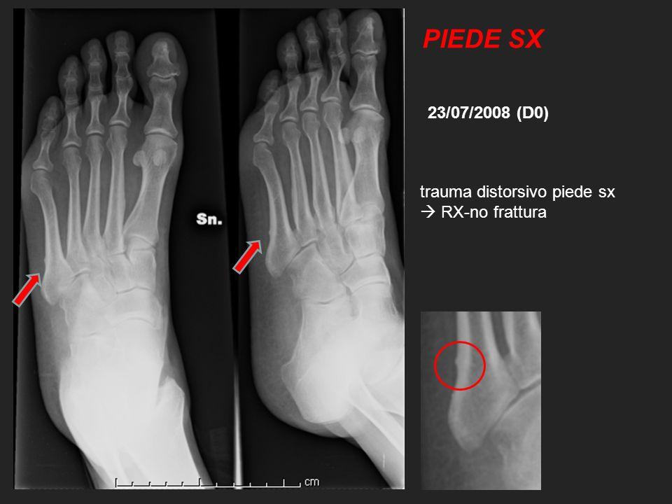 trauma distorsivo piede sx RX-no frattura 23/07/2008 (D0) PIEDE SX