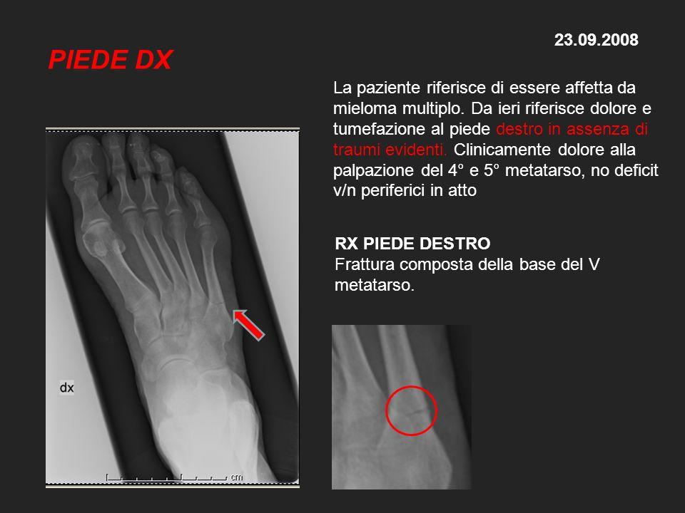 23.09.2008 RX PIEDE DESTRO Frattura composta della base del V metatarso. La paziente riferisce di essere affetta da mieloma multiplo. Da ieri riferisc