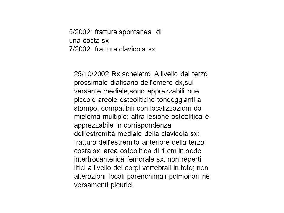 5/2002: frattura spontanea di una costa sx 7/2002: frattura clavicola sx 25/10/2002 Rx scheletro A livello del terzo prossimale diafisario dell'omero