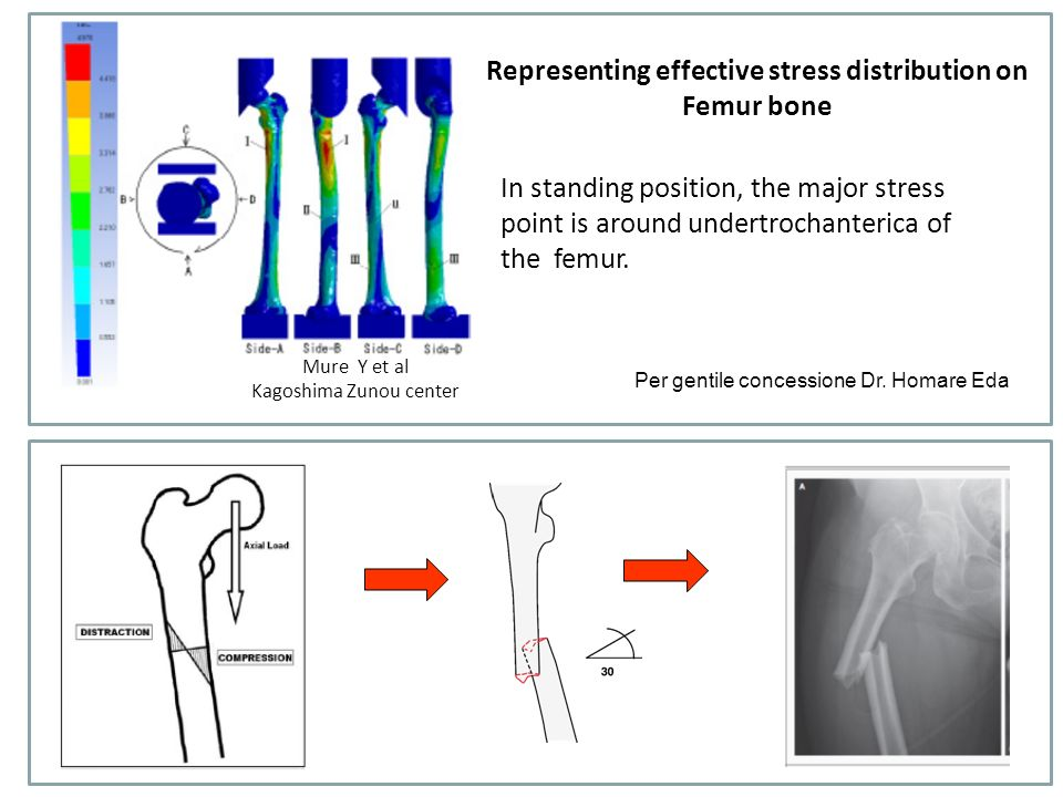 Definition: low energy fracture in patients receiving bisphosphonates Clinical presentation: prodromic pain Induced by minor trauma (falling from a standing height or less) Type of fracture: subtrochanteric or proxymal diaphyseal fracture Radiology: chalk stick fracture with thickening of the cortical bone or simple with thick cortex Biopsy: in a subset of patients there is a suppressed bone turn-over Outcome: in some cases delayed healing that can improve with administration teraparatide Definizione e caratteristiche