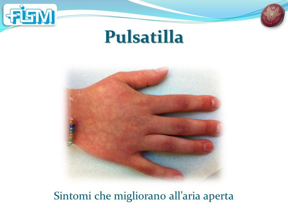 Pulsatilla Sintomi che migliorano allaria aperta