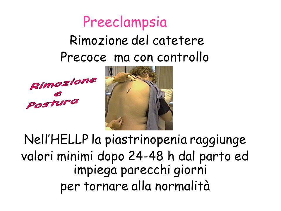 Preeclampsia Rimozione del catetere Precoce ma con controllo NellHELLP la piastrinopenia raggiunge valori minimi dopo 24-48 h dal parto ed impiega par