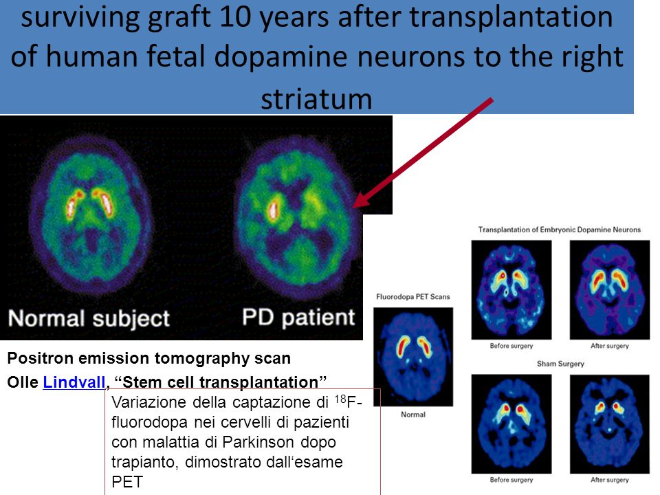 surviving graft 10 years after transplantation of human fetal dopamine neurons to the right striatum Positron emission tomography scan Olle Lindvall,