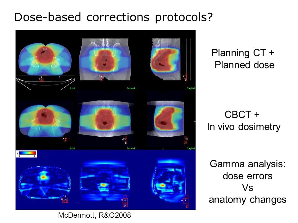 Dose-based corrections protocols? Planning CT + Planned dose CBCT + In vivo dosimetry Gamma analysis: dose errors Vs anatomy changes McDermott, R&O200