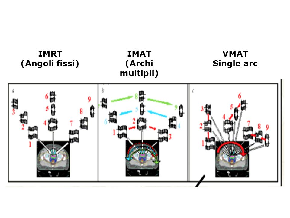IMRT (Angoli fissi) IMAT (Archi multipli) VMAT Single arc