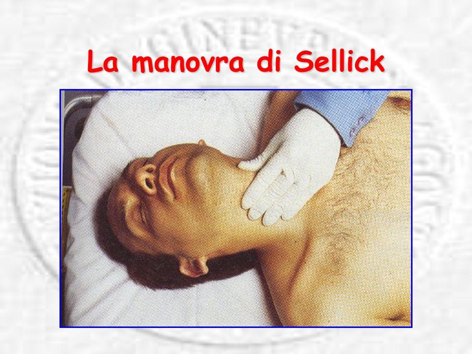 La manovra di Sellick