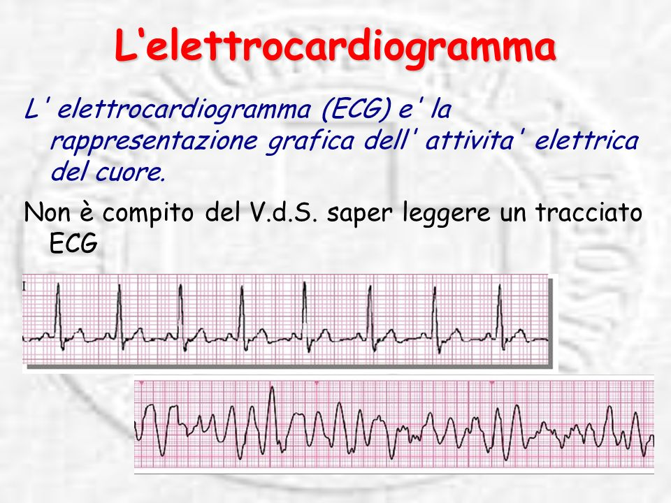 Lelettrocardiogramma L elettrocardiogramma (ECG) e la rappresentazione grafica dell attivita elettrica del cuore.