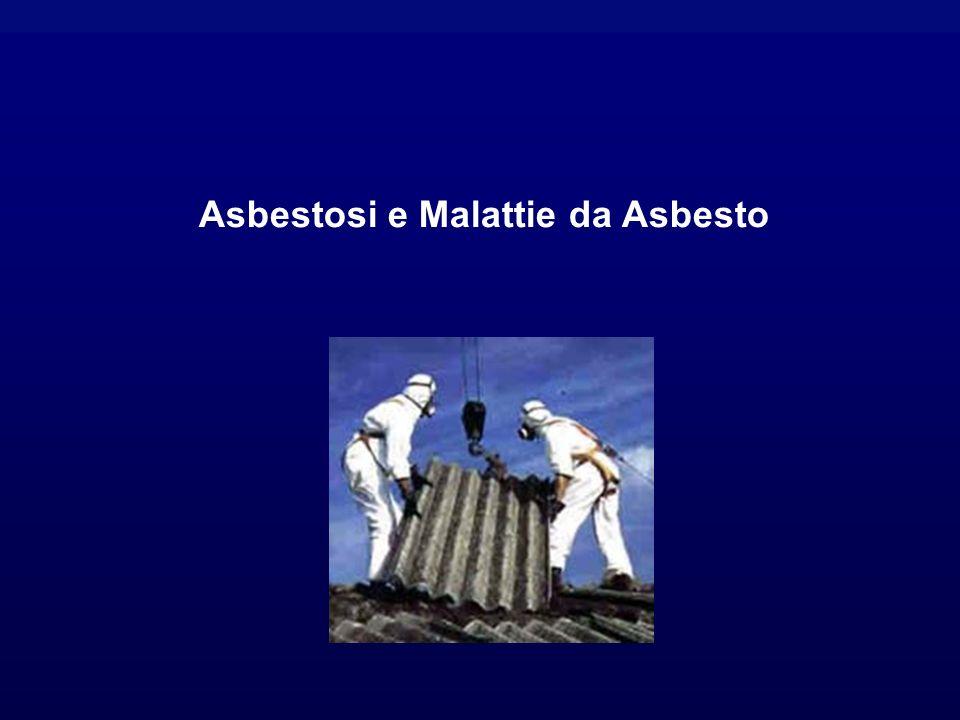Asbestosi e Malattie da Asbesto