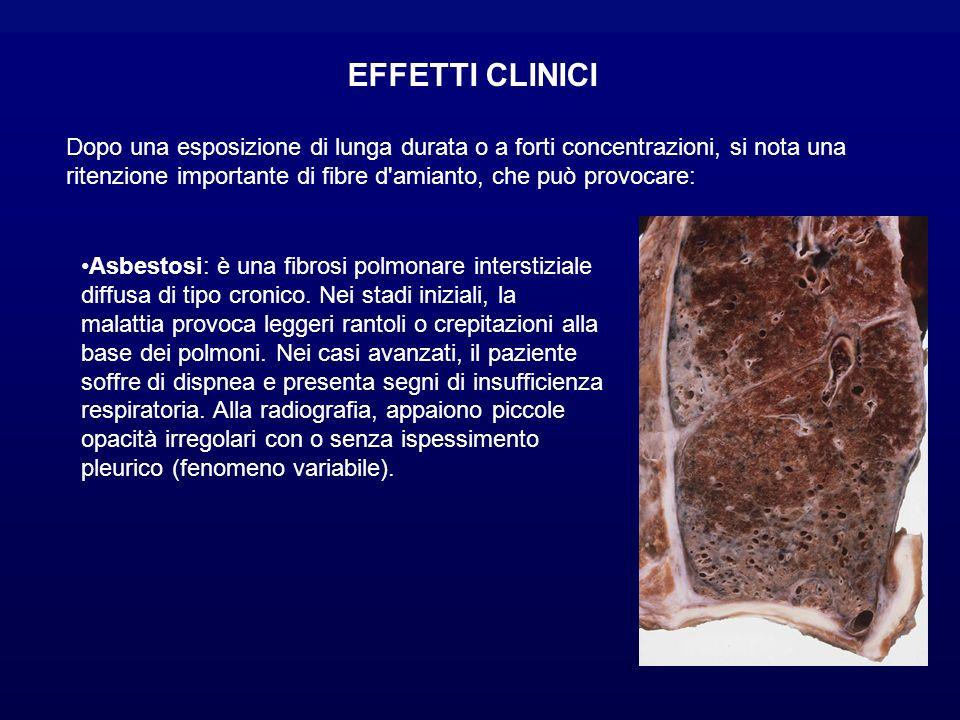 EFFETTI CLINICI Dopo una esposizione di lunga durata o a forti concentrazioni, si nota una ritenzione importante di fibre d amianto, che può provocare: Asbestosi: è una fibrosi polmonare interstiziale diffusa di tipo cronico.