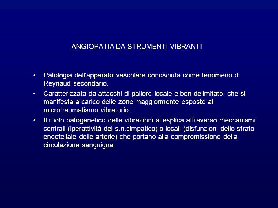 ANGIOPATIA DA STRUMENTI VIBRANTI Patologia dellapparato vascolare conosciuta come fenomeno di Reynaud secondario.
