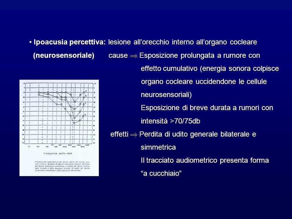 Ipoacusia percettiva: lesione allorecchio interno allorgano cocleare (neurosensoriale) cause Esposizione prolungata a rumore con effetto cumulativo (energia sonora colpisce organo cocleare uccidendone le cellule neurosensoriali) Esposizione di breve durata a rumori con intensità >70/75db effetti Perdita di udito generale bilaterale e simmetrica Il tracciato audiometrico presenta forma a cucchiaio