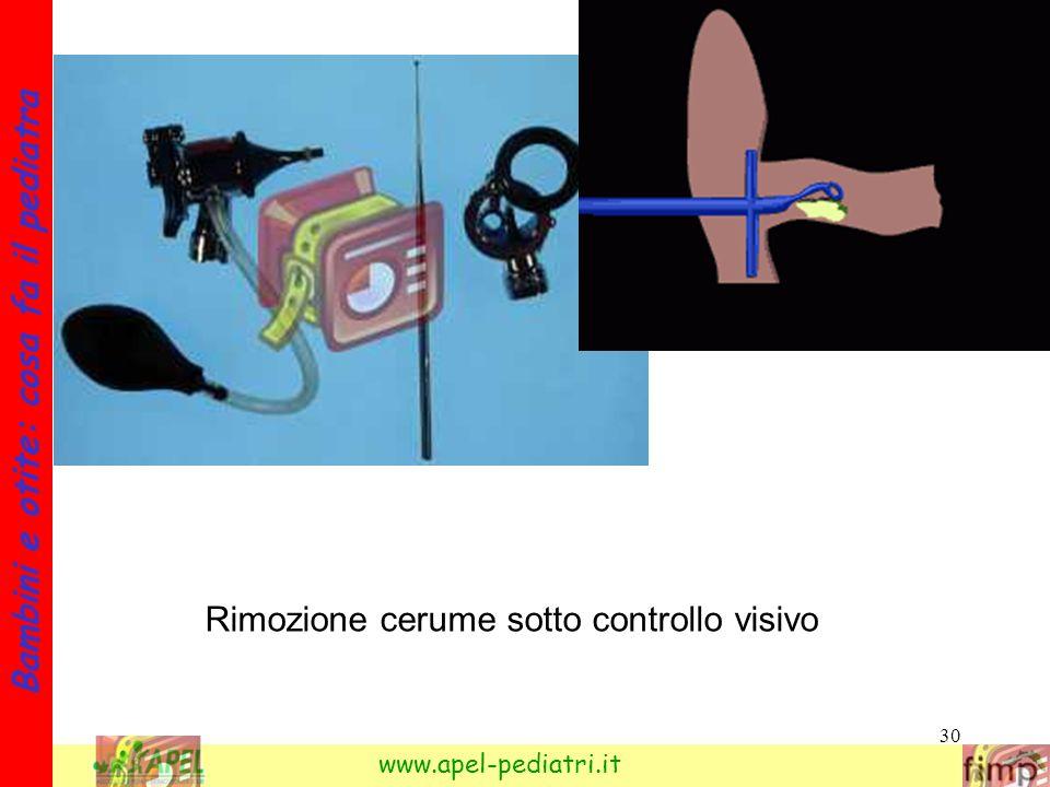 30 Bambini e otite: cosa fa il pediatra www.apel-pediatri.it Rimozione cerume sotto controllo visivo