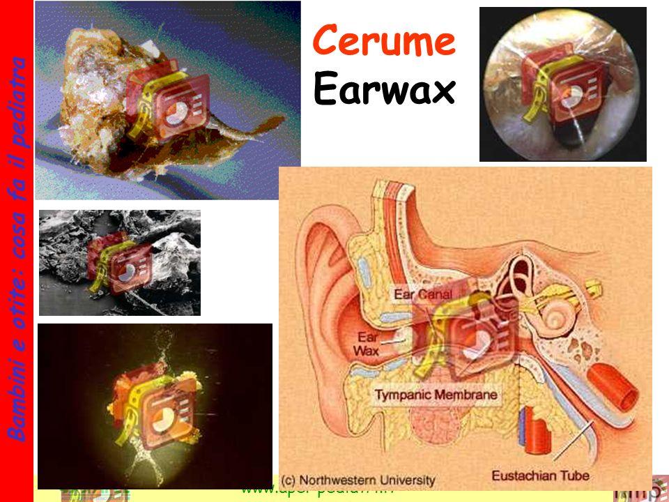 31 Bambini e otite: cosa fa il pediatra www.apel-pediatri.it Cerume Earwax