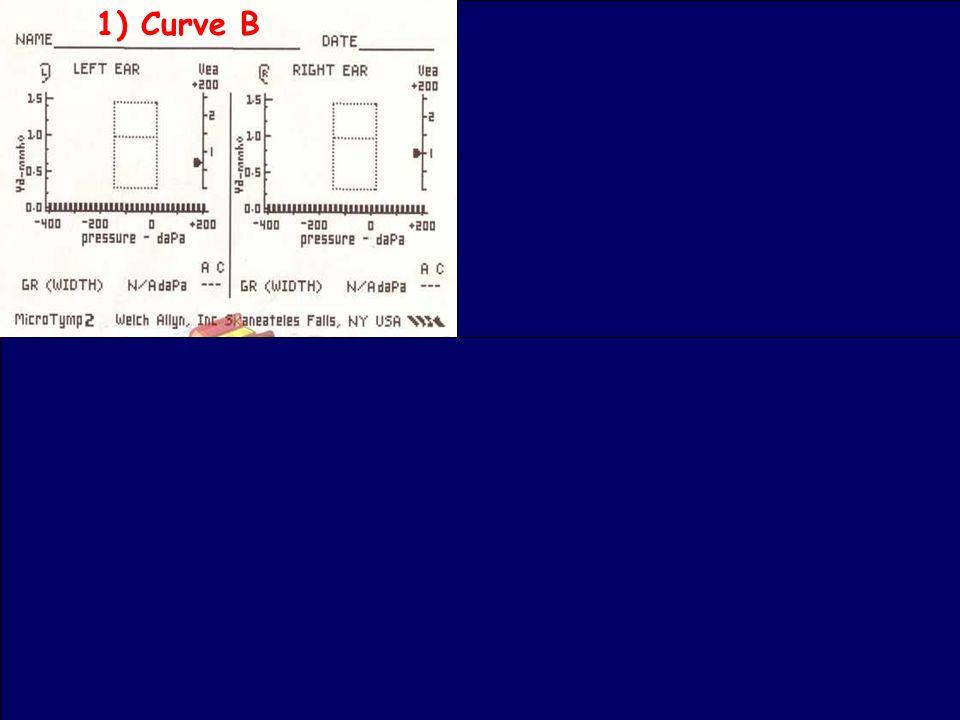 48 Bambini e otite: cosa fa il pediatra www.apel-pediatri.it 1) Curve B 2) Curve B 3) Curva B Curve A 4) Curve A