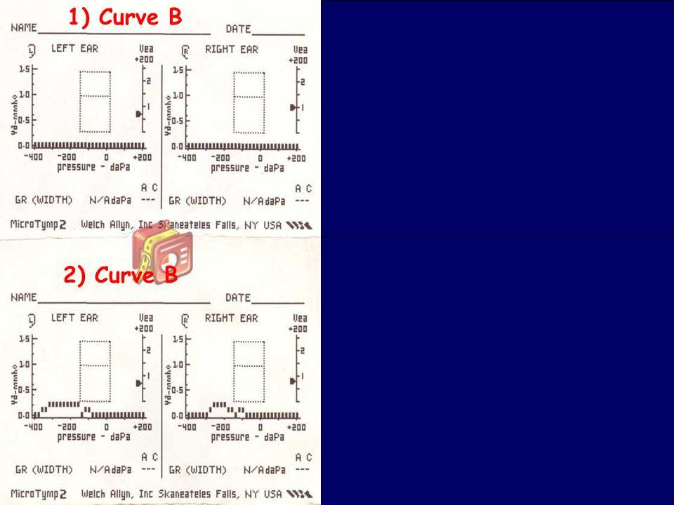 49 Bambini e otite: cosa fa il pediatra www.apel-pediatri.it 1) Curve B 2) Curve B 3) Curva B Curve A 4) Curve A