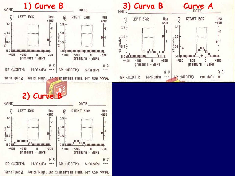 50 Bambini e otite: cosa fa il pediatra www.apel-pediatri.it 1) Curve B 2) Curve B 3) Curva B Curve A 4) Curve A