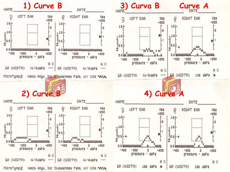51 Bambini e otite: cosa fa il pediatra www.apel-pediatri.it 1) Curve B 2) Curve B 3) Curva B Curve A 4) Curve A