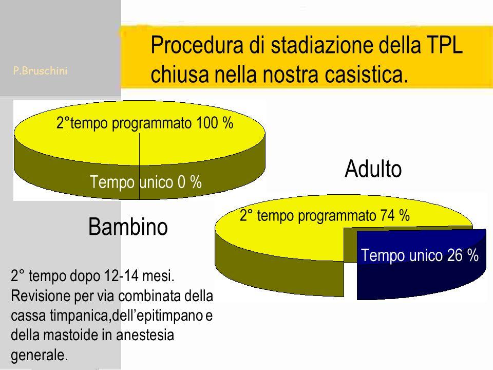 P.Bruschini Procedura di stadiazione della TPL chiusa nella nostra casistica. 2° tempo dopo 12-14 mesi. Revisione per via combinata della cassa timpan