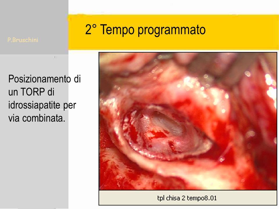 P.Bruschini Posizionamento di un TORP di idrossiapatite per via combinata. 2° Tempo programmato