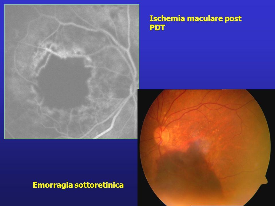 Emorragia sottoretinica Ischemia maculare post PDT