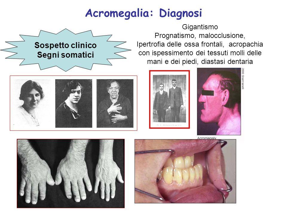 Acromegalia: Diagnosi Sospetto clinico Segni somatici Gigantismo Prognatismo, malocclusione, Ipertrofia delle ossa frontali, acropachia con ispessimen