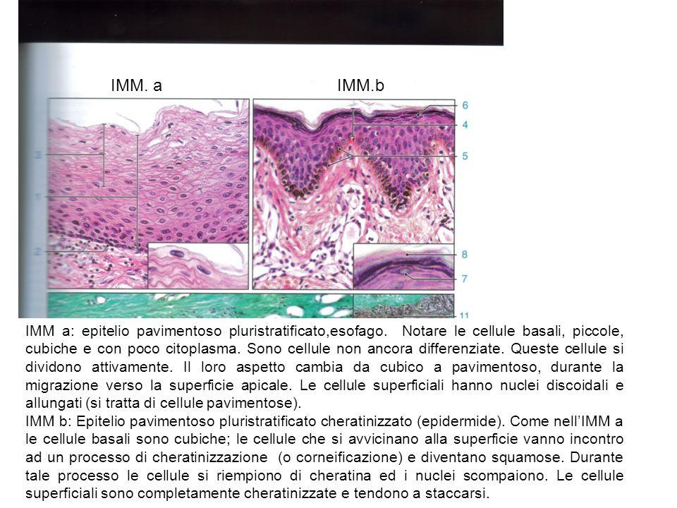 IMM aIMM b IMM a: Epitelio cubico pluristratificato (lingua).