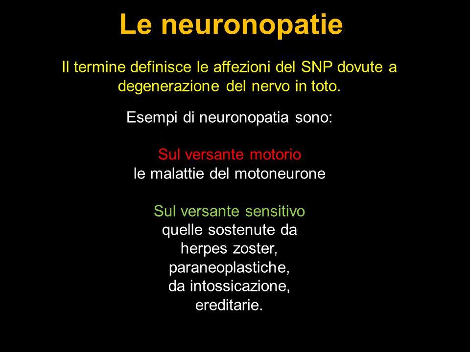 Il termine definisce le affezioni del SNP dovute a degenerazione del nervo in toto.