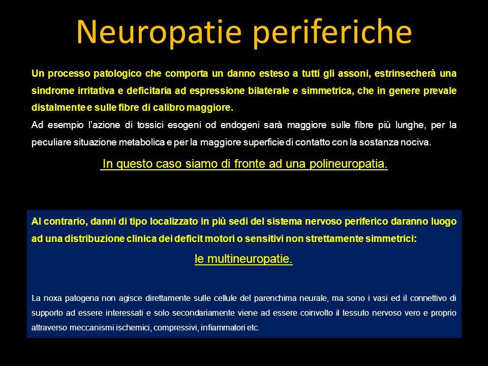 Neuropatie periferiche Un processo patologico che comporta un danno esteso a tutti gli assoni, estrinsecherà una sindrome irritativa e deficitaria ad espressione bilaterale e simmetrica, che in genere prevale distalmente e sulle fibre di calibro maggiore.